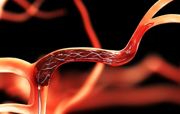 venous thrombectomy