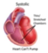 Heart_Failure.png