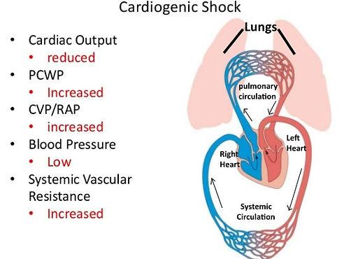 cardiogenic_shock.jpg
