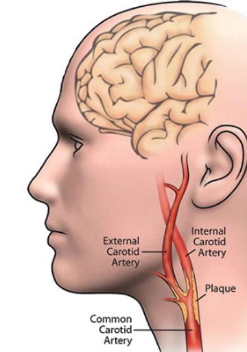 carotid_artery_disease.jpg