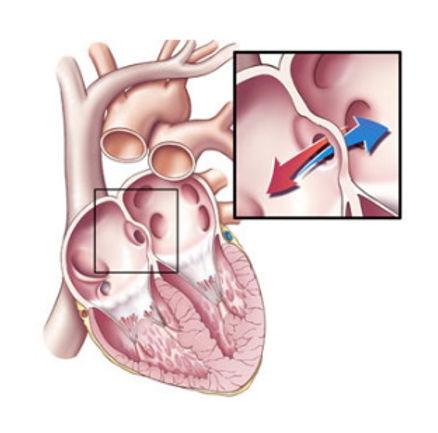 congenital_heart_disease.jpg