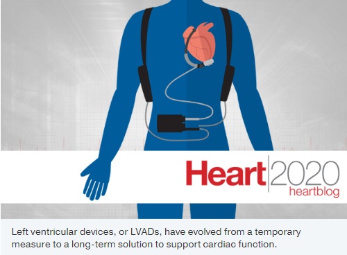 LVADs no longer just a bridge, but a long-term alternative to heart transplant
