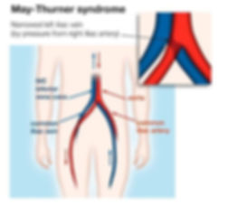 may_thurner_syndrome.jpg