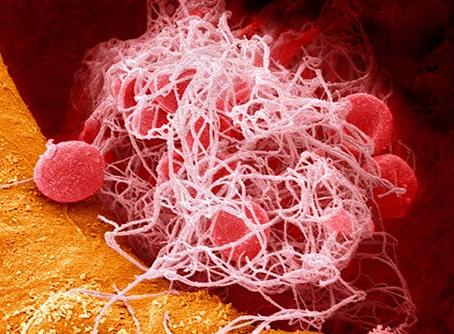 Blood Clot Symptoms to Know