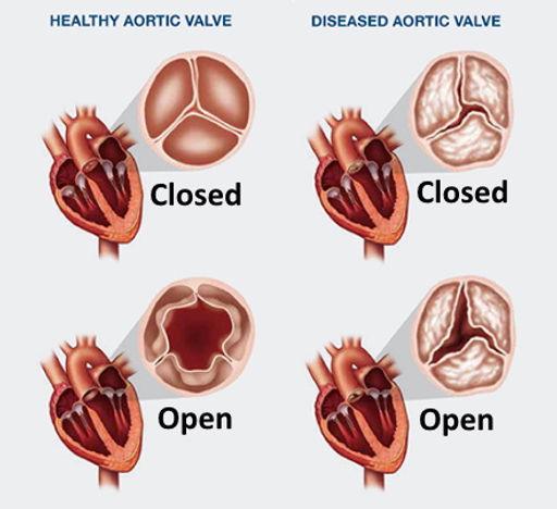 valvular_heart_disease.jpg