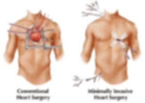 off pump cardiac surgery