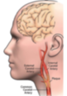 carotid_artery_disease.png