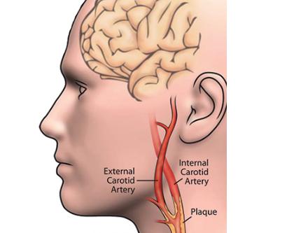 Know The Symptoms of Carotid Artery Disease