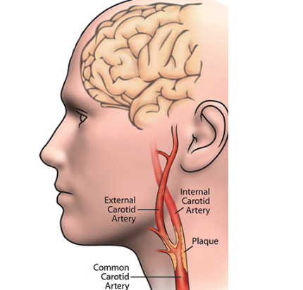 Know The Symptoms of Carotid Artery Disease