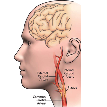 Illustration of Carotid Arteries