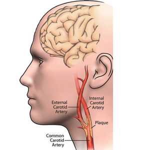Carotid Artery Diagram