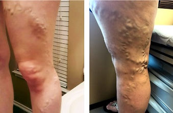 sclerotherapy3.jpg