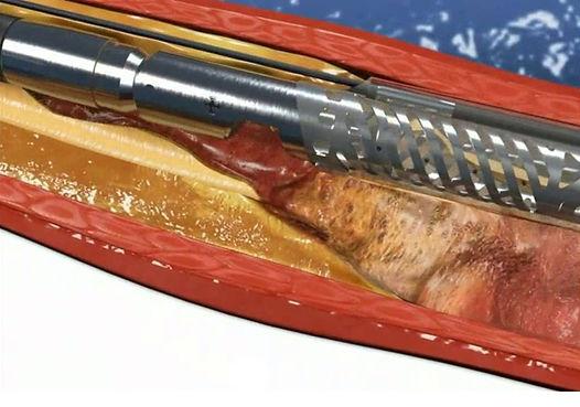 atherectomy.jpg