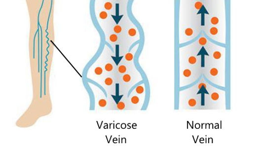 varicose_veins.jpg