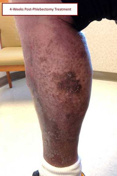 4 week post phlebectomy pt3 with label.j