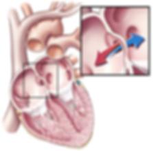 congenital_heart_disease.png