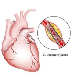 chronic_total_occlusion_heart.jpg