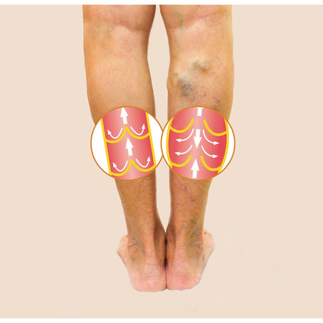 Phlebectomy For Varicose Veins