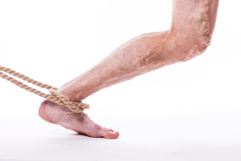 a leg with varicose veins held by a rope