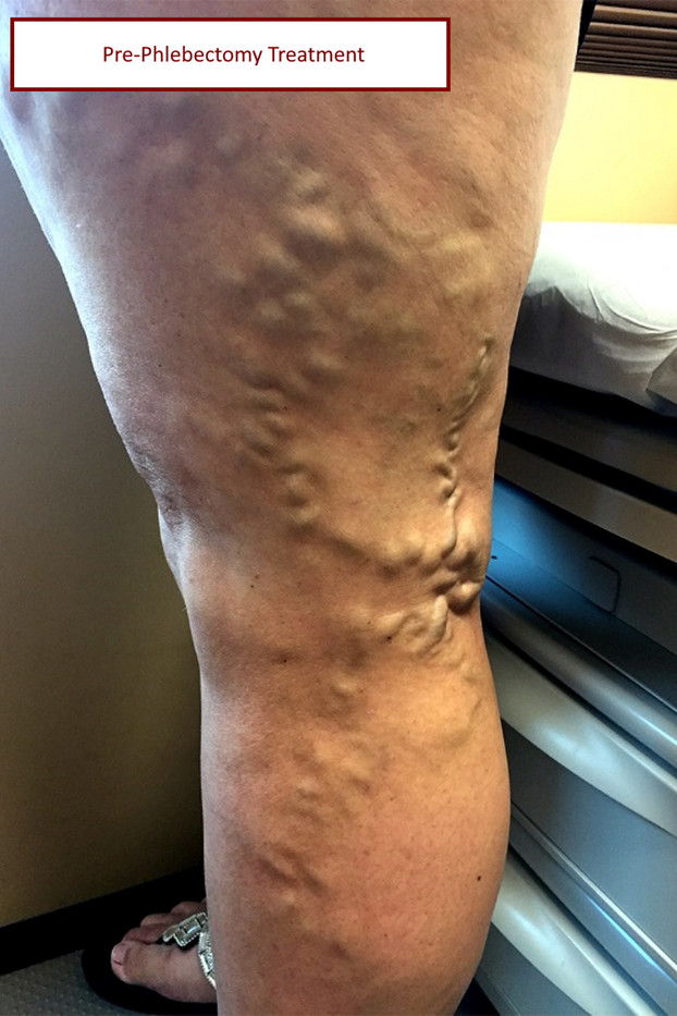 pre vein phlebectomy pt4 with label.jpg