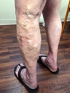 spider veins2.jpg
