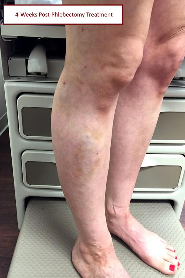 4 week post phlebectomy_pt2