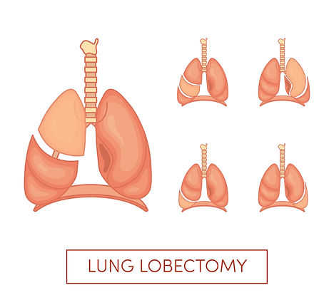 lung surgery