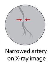 CardiacCatheterization.jpg