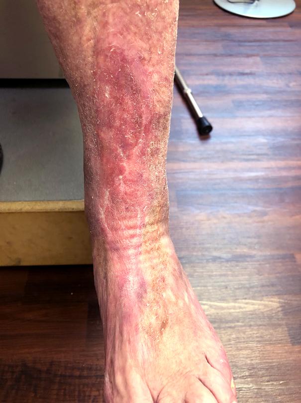 Ulcer Treatment Patient 6