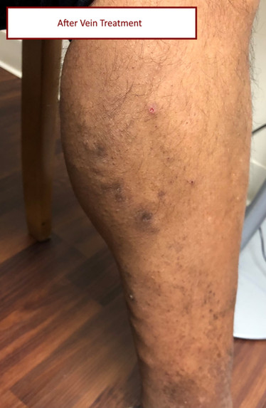 after vein procedure-ramanath