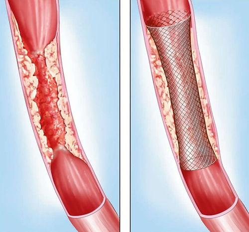 vein stent