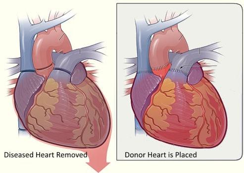 Heart Transplant Evaluation