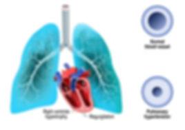 pulmonary_htn.jpg