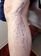 spider veins7.jpg