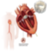 TAVR.png