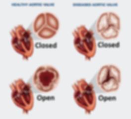 valvular_heart_disease.png