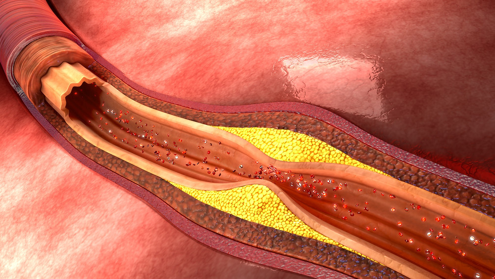 cholesterol build up in an artery