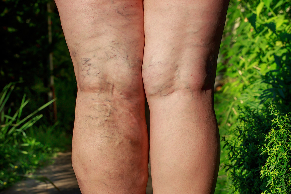 back of two legs with bulging varicose veins