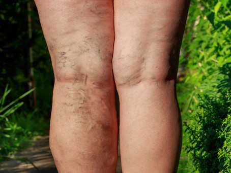 Endovenous Chemical Thermal Ablation (Laser Therapy)