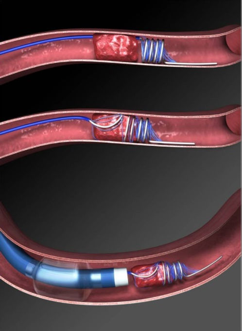 arterial thrombectomy