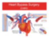 cardiac_bypass.jpg