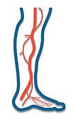 artery (arteries) plano tx