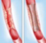 vein_stent.jpg