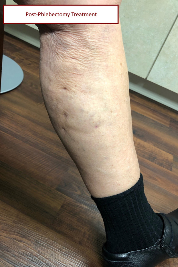 post vein treatment with label.jpg