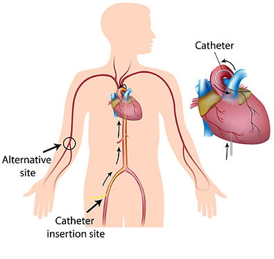 Cardiac_Catheterization.jpg