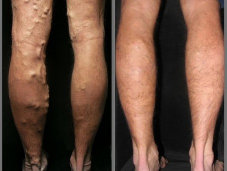 Could You Be a Sclerotherapy Candidate?