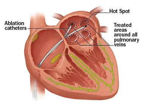 atrial fibrillation correction surgery