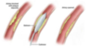 peripheral angioplasty