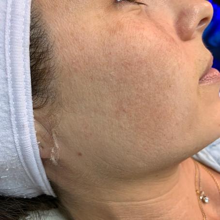 Dermaplane and Hydrafacial