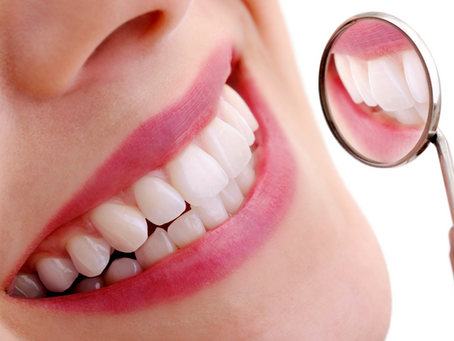 De perfecte glimlach bij DentalDynamic!